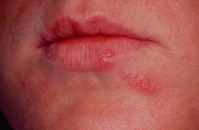 sår ved læben