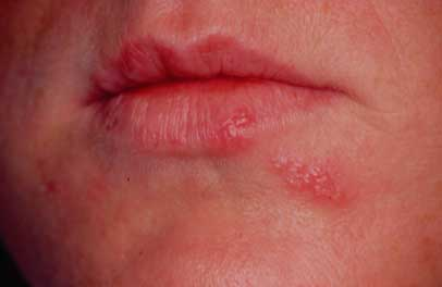 svamp i mundvigen behandling