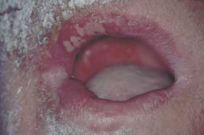 Tungen forkølelsessår på Herpes i
