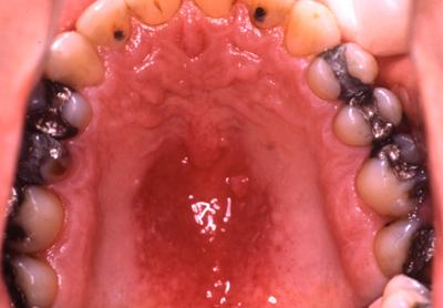 svamp i halsen ondt