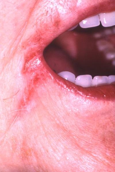 Røde forandringer i munden   tandogmund.dk