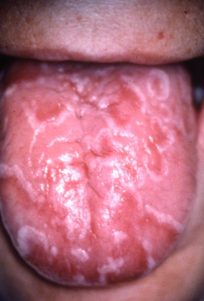 prikker på tungen