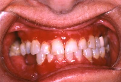 hævet tandkød bagerst i munden