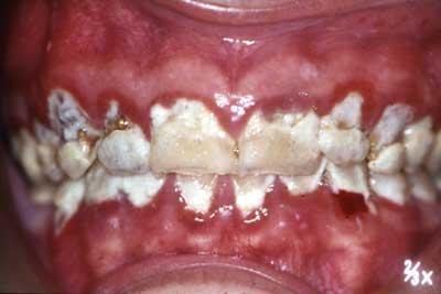 hvorfor får man tandsten