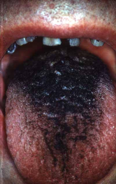 sort tunge klorhexidin