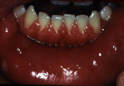 anaerobe bakterier i mundhulen